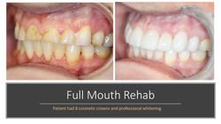 Full Mouth Rehab