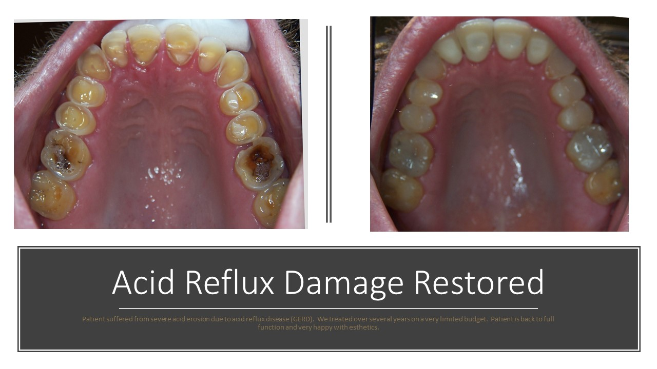 Acid Reflux Damage Restored
