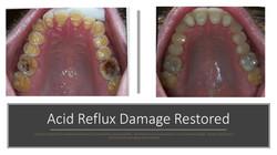 Acid Reflux Damage Restored