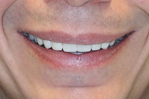 Lumineers / Cosmetic Dentistry