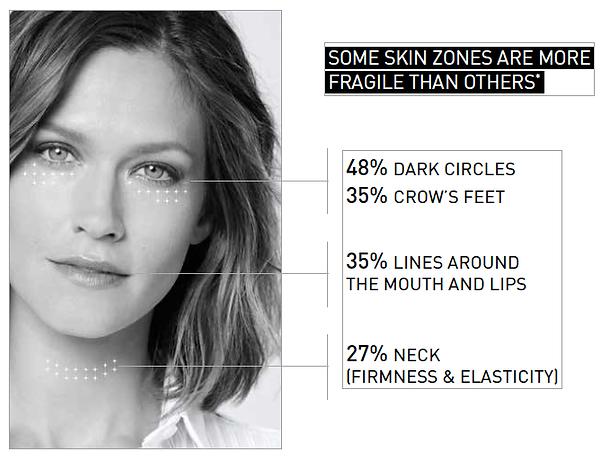Skin zones.png