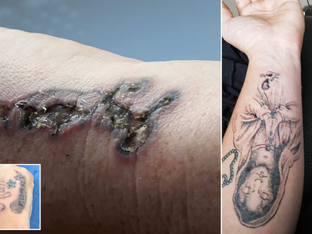 Laser Tattoo Removal Not Regulated