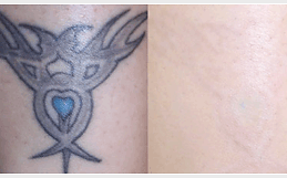 Think Tattoo Removal Cream | United States | Tattoo Removal Cream