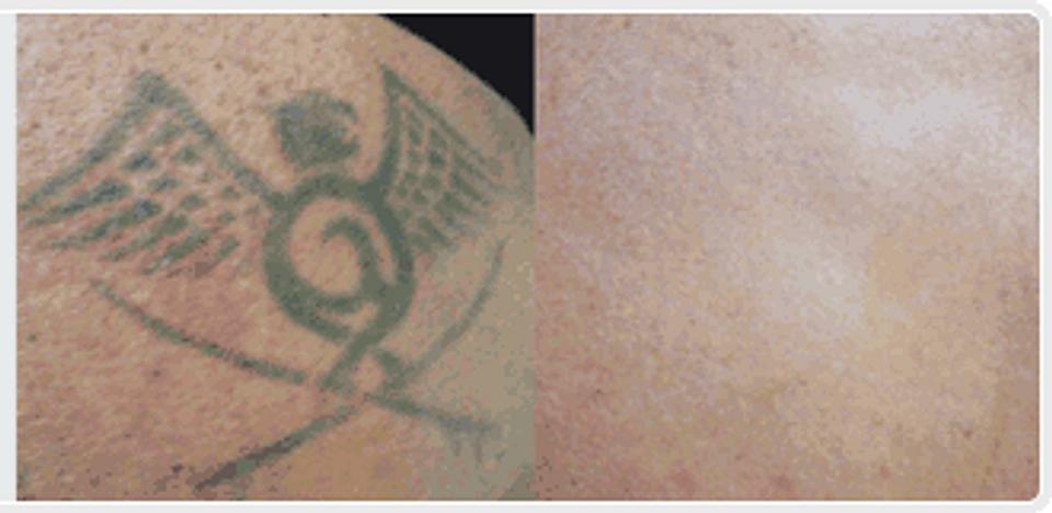 Think Tattoo Removal Cream | United States | Tattoo Removal Cream
