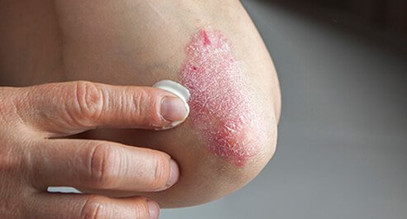 Is Psoriasis Infectious?