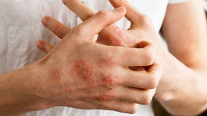 Eczema-psoriasis-skin-disease-red-itchy-