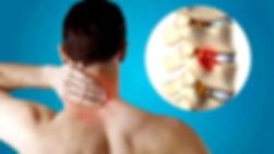 Cervical-Spondylosis.jpg