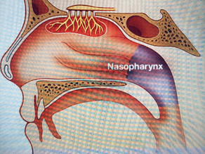 Nose Cancer (NPC): a rare cancer in the West, but common in the East