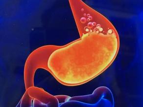 Burp! Belch!Help!                                         Gastro-Esophageal Acid Reflux (GERD)