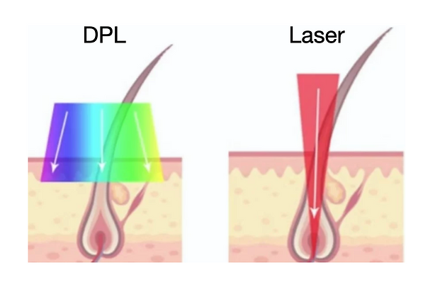 DPL and Laser Hair Removal Treatment