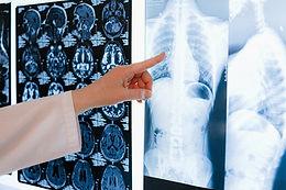 """השתלת ריאות הינה פתרון המוצע למטופלים עם מחלות ריאה סופניות לאחר שמוצו כל קווי הטיפול האחרים. בשל השיפור בשעורי השרידות ואיכות החיים לאחר השתלה במהלך העשורים האחרונים, יש עלייה מתמדת במספר השתלות הריאה המבוצעות בעולם, כאשר רוב ההשתלות כיום הן של שתי ריאות ולא של ריאה אחת (איור 1).       המטרה בהשתלת ריאות היא להאריך את תוחלת החיים ו/או לשפר את  איכות החיים של המטופל. המחלות המהוות כיום את הגורם העיקרי להשתלת ריאות הן פיברוזיס ריאתי, נפחת (COPD) וליפת כיסתית (ציסטיק פיברוזיס), אך יש מחלות נוספות שעשויות להביא למצב בו נזקקת השתלת ריאות כמו יתר לחץ דם ריאתי ראשוני, סרקואידוזיס, חסר אלפא-1 אנטי-טריפסין, מחלות פיברוטיות אחרות ועוד. רוב המטופלים, הזקוקים להשתלה, מופנים להערכת רופא ריאות מומחה בהשתלות ריאה. בשלב הראשון נערכת שיחה עם המועמד להשתלה ועם בני משפחתו על מנת לוודא שאכן יש צורך בהשתלה, ועל מנת להעריך את מידת הסיכון הכרוך בתהליך מול הסיכוי להשיג שיפור ניכר באיכות החיים ובתוחלת החיים. בסיום השיחה תתקבל החלטה משותפת האם ממשיכים בהערכה לקראת השתלה, האם ממתינים עם התחלת הערכה כיוון שהמצב הנוכחי לא מצדיק השתלה, או לחלופין דוחים על הסף את האפשרות של השתלה. תהליך ההערכה לקראת השתלה כולל ביצוע בדיקות על ידי רופאים מתחומים שונים, בדיקות מעבדה, בדיקות דימות (שחלקן פולשניות). המטרה היא לוודא שאין מחלות או מצבים רפואיים העשויים לסכן את המועמד להשתלה בזמן ההמתנה להשתלה, בעת הניתוח או לאחר ניתוח ההשתלה. כאשר מתגלים מצבים רפואיים העשויים לסכן את המועמד הם מטופלים מבעוד מועד (למשל פתיחת חסימות בעורקי הלב שנמצאו בזמן צנתור לבבי שנעשה כחלק מההערכה להשתלה).  חלק מבדיקות ההערכה להשתלה מובאות להלן: •הערכת מערכת הנשימה - צלום חזה, CT חזה, מיפוי ריאות, תפקודי ריאות מלאים, מבחן הליכה 6 דקות •הערכת המערכת הקרדיווסקולרית (לב וכלי דם) – אק""""ג, אקו לב, צנתור לב (מעל גיל 40 או בנוכחות גורמי סיכון קרדיווסקולריים), דופלר קרוטידים  •הערכה רופא גסטרו ובמידת הצורך ביצוע גסטרוסקופיה ו/או קולונוסקופיה •הערכת רופא עור בחיפוש ממאירויות של העור •הערכת רופא שיניים  •הערכת רופא אורולוג כולל בדיקת PSA אצל גברים •הערכת רופא נשים ובדיקת PAP •בדיקת ממוגרפיה אצל נשים •הערכת רופא זיהומים לצורך בדיקת הסיכון לזיהו"""