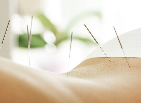 """PAIN MANAGEMENT – 5 REASONS WHY ACUPUNCTURE SHOULD BE YOUR """"GO TO"""" CHOICE"""