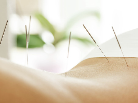"PAIN MANAGEMENT – 5 REASONS WHY ACUPUNCTURE SHOULD BE YOUR ""GO TO"" CHOICE"