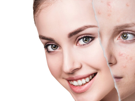Effective treatments for acne scarring