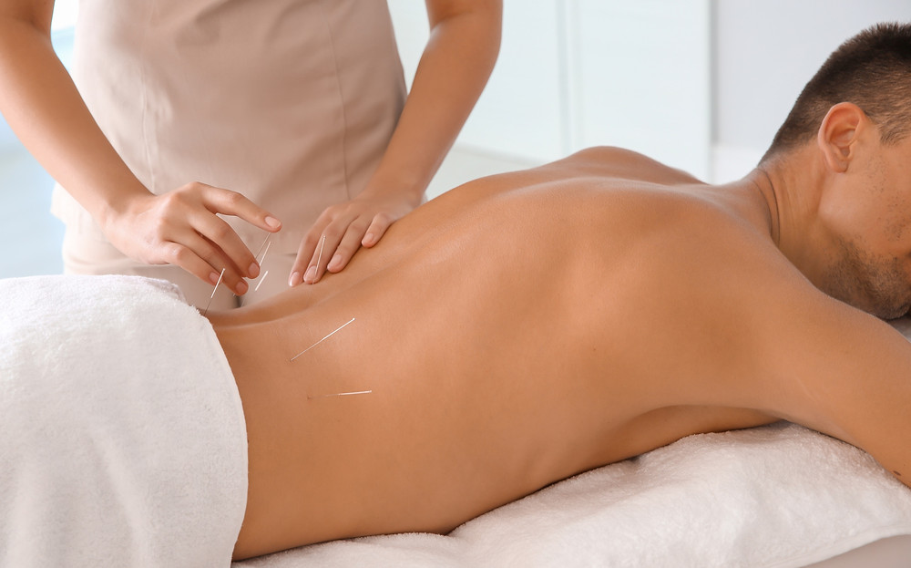 lower back pain acupuncture treatment