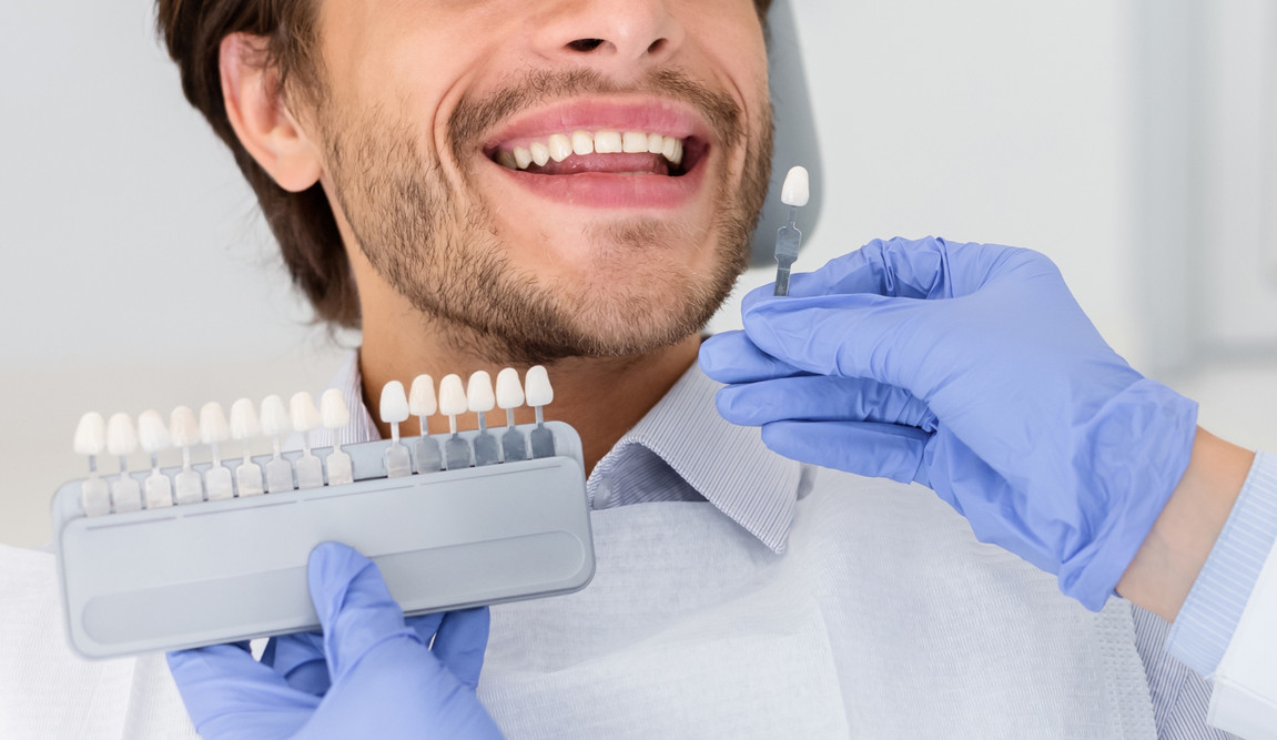 dentist-applying-sample-from-tooth-scale
