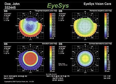 eyesys.jpg