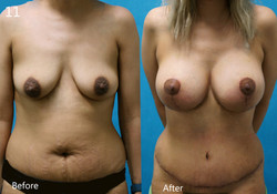 Abdominoplasty, Larry A Sargent,MD