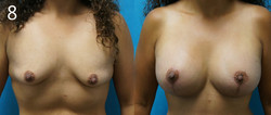 Breast Lift/Implants