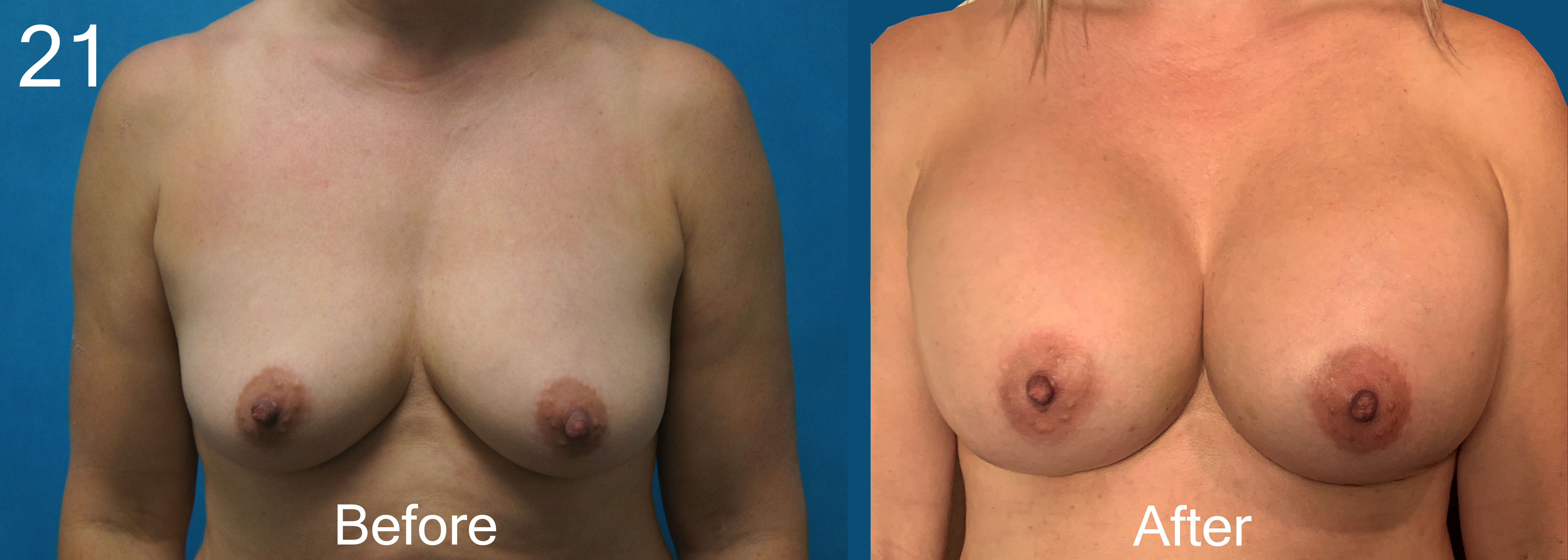 Breast Augmentation Larry A Sargent, MDD