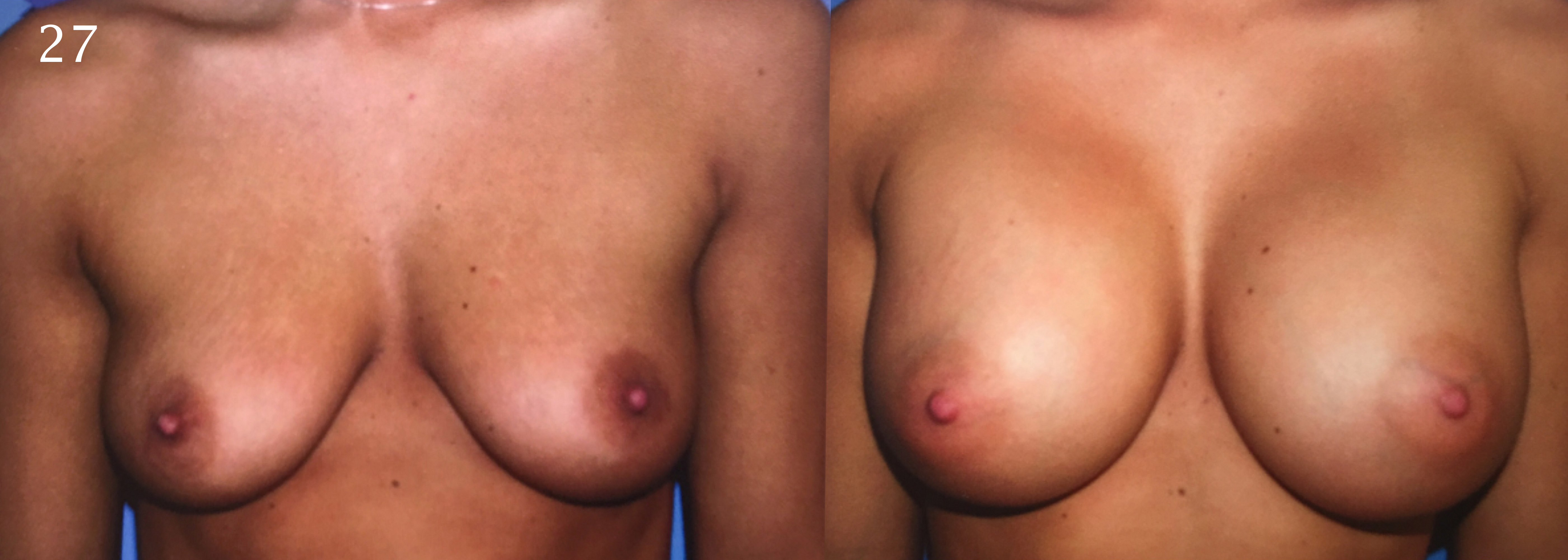 Breast Augmentation, Larry A Sargent MD