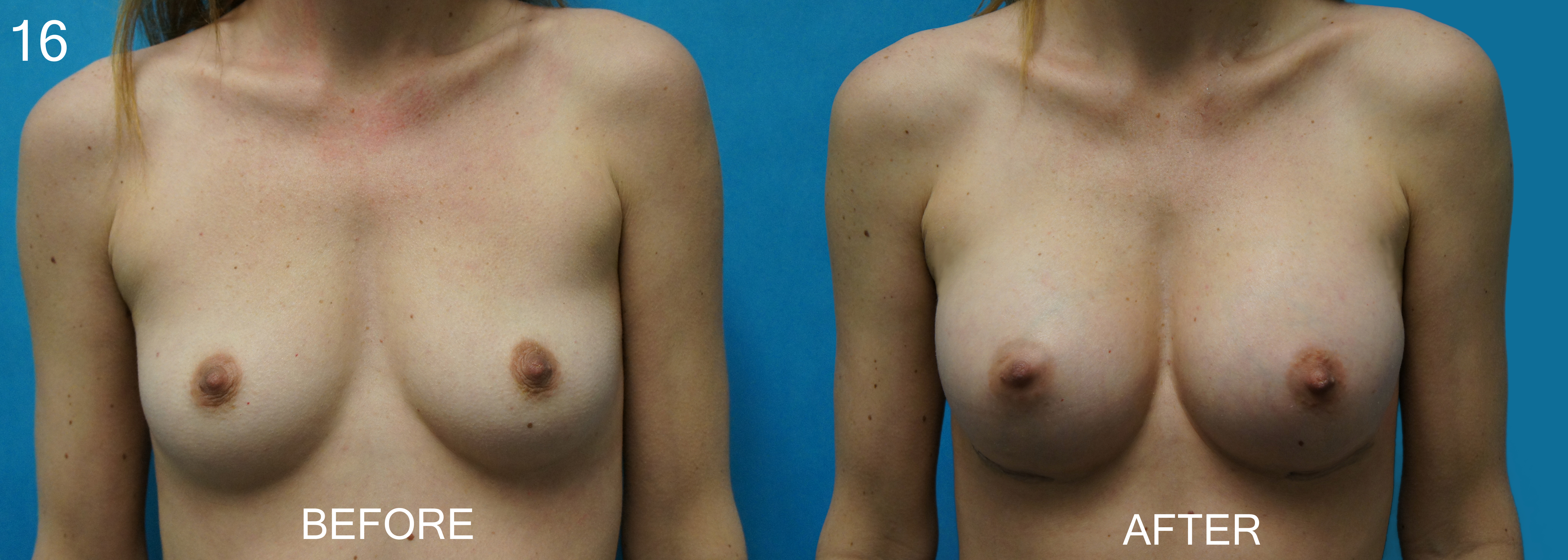 Breast Augmentation , Dr, Sargent