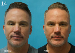 Facelift, Larry A Sargent, MD