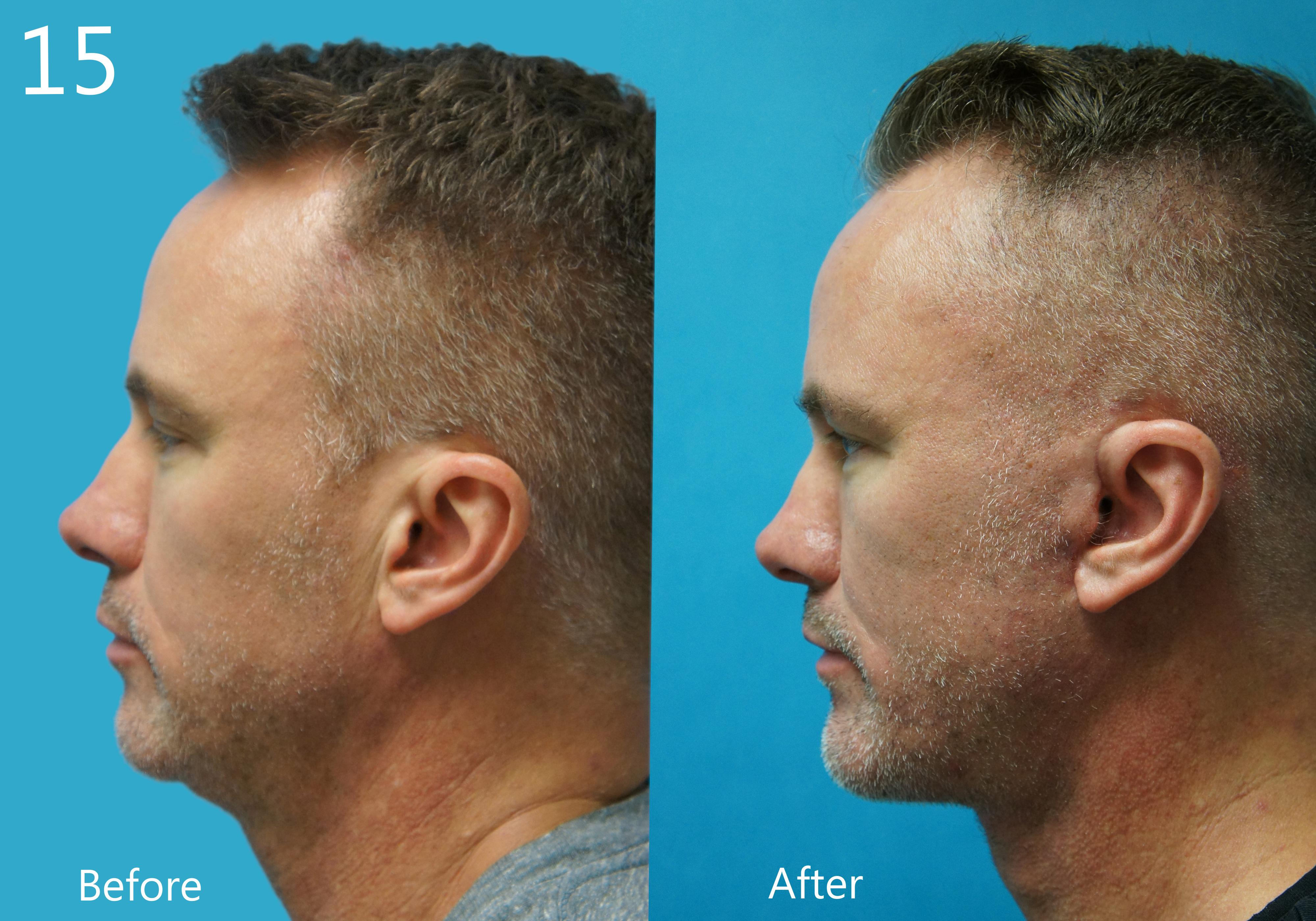 Facelift, Larry A Sargent, MD