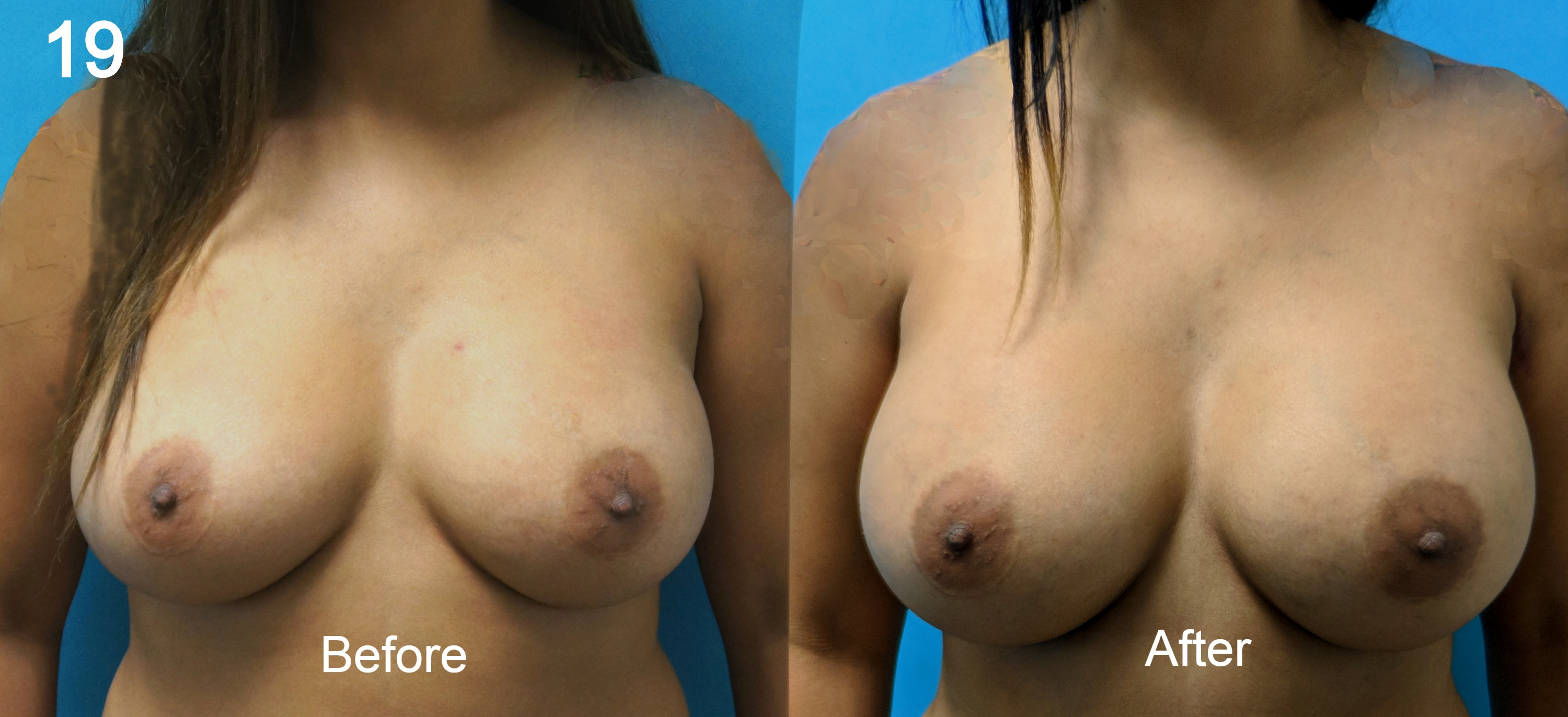 Breast Augmentation, Larry A Sargent, MD