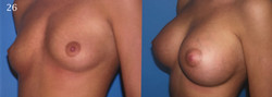 Breast Augmentation, Larry A Sargent
