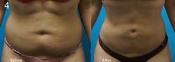 Liposuction Abdomen