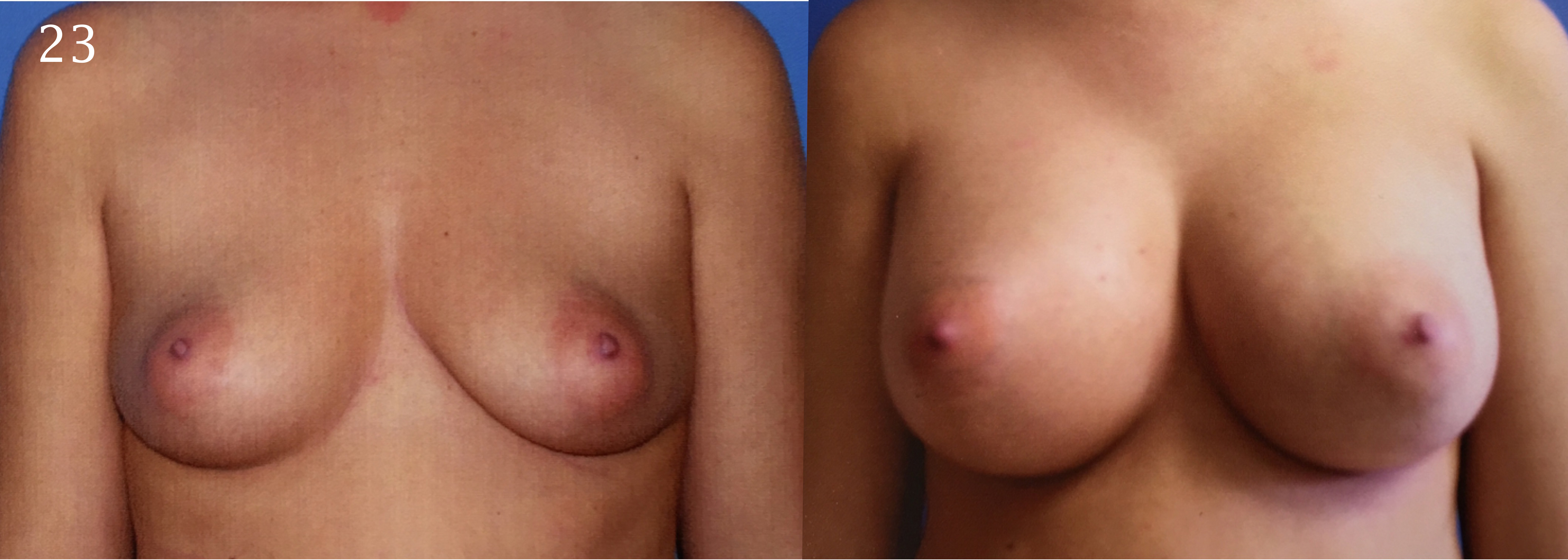 Breast Augmentation, Larry A Sargent,MD