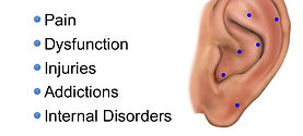 Auriculotherapy helps many issues.