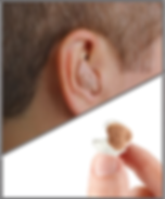 ITE Ear Photo Handmade.png