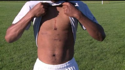 Local soccer player returns to field after heart transplant – FOX43.com