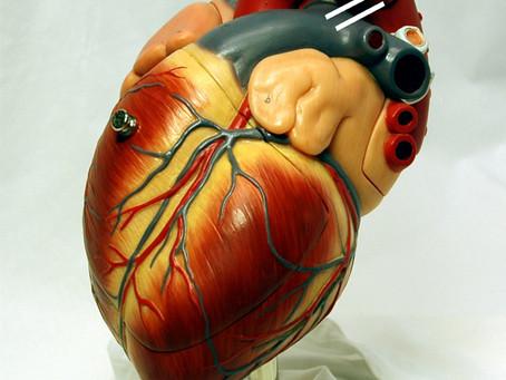 3D-printed organs to help transplant patients? – Crave