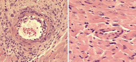 Compound protects transplanted hearts from rejection | Cornell Chronicle