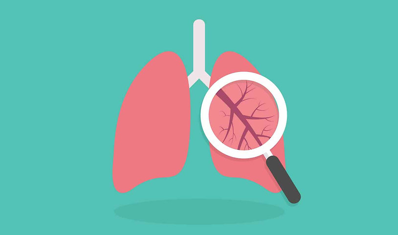 lung_shutterstock_384620770-rsz.jpg