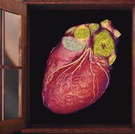 Florida Hospital Celebration Heart