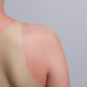 Top tips for sun exposure