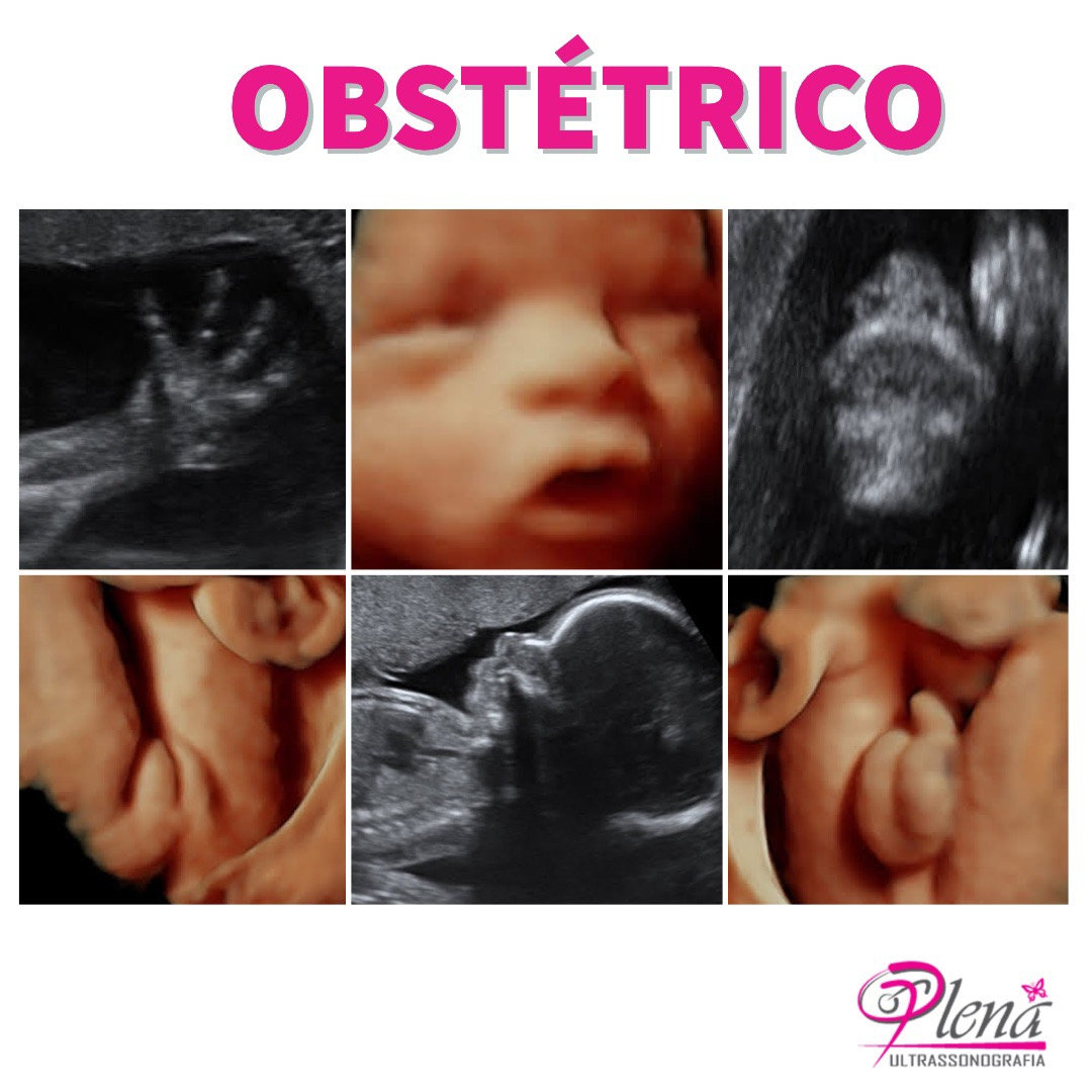Ultrassom Obstétrico