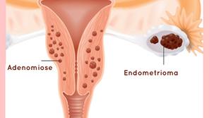 Endometrioma?