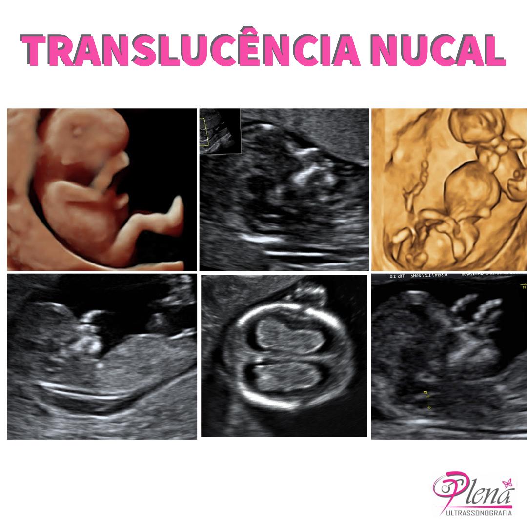 Translucência Nucal ou Morfológico de 1°