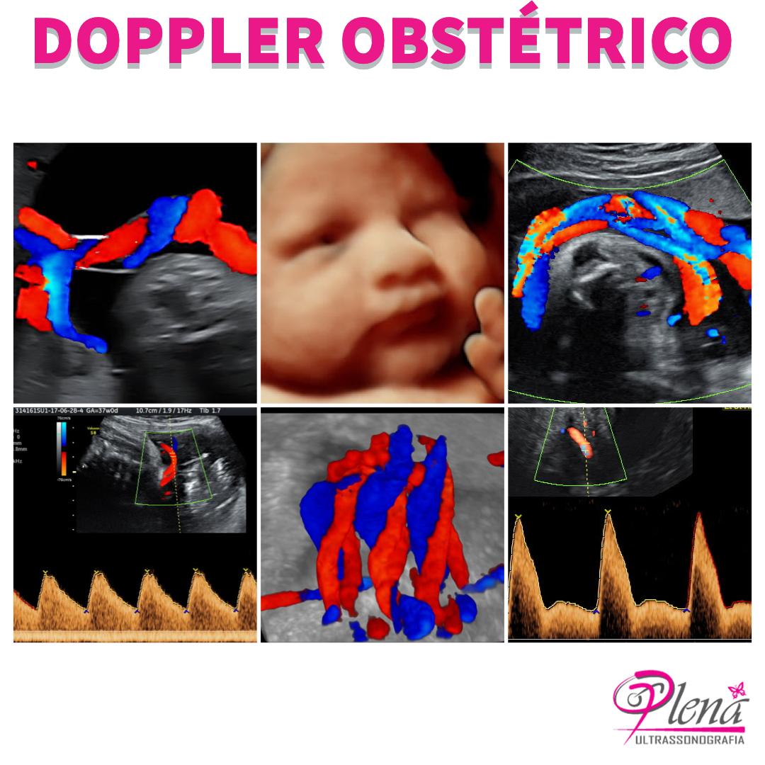 Dopplerfluxometria Obstétrica