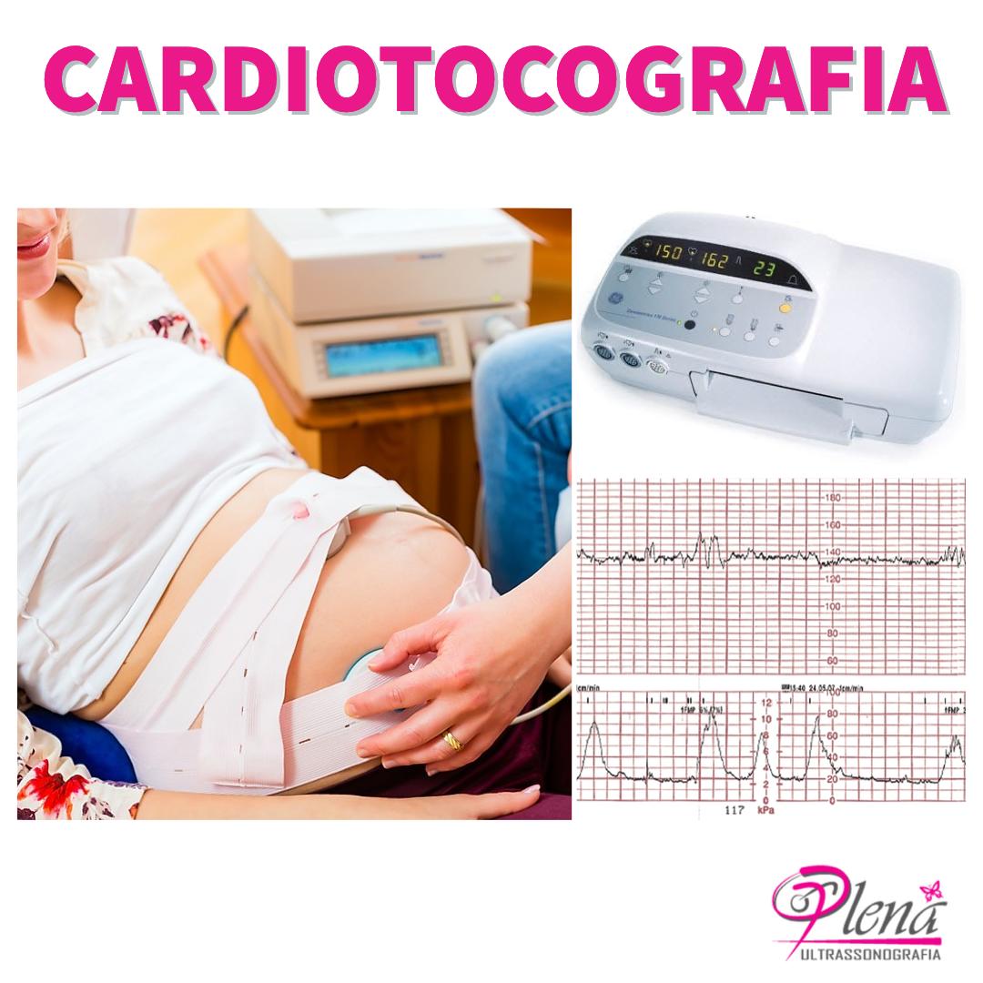 Cardiotocografia Basal