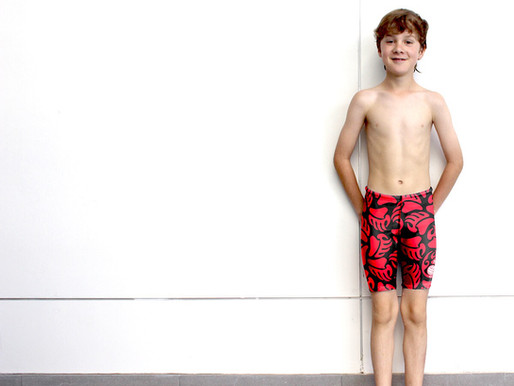 Four Important Ways Swimming Can Be a Natural Cure