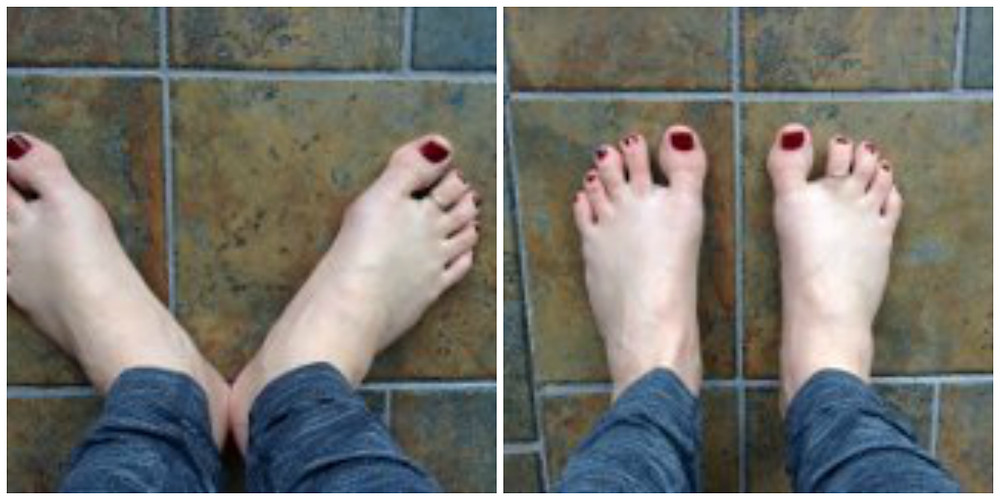 Standing with the feet parallel can help your body recover from fallen arches.