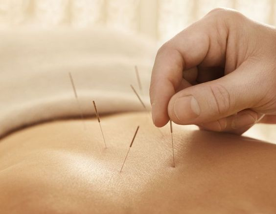 Acupuncture at River Family Wellness