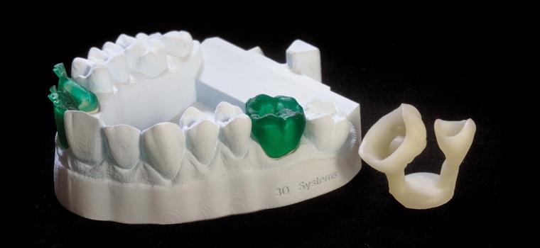 visijet-ftx-green-model-and-waxups_0
