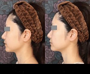 コラーゲン再生フォト美顔2.png